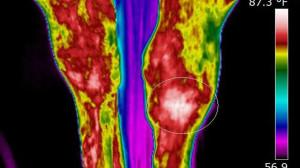 termografia-clinica